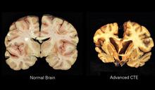 brains Wikibooks